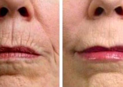rejuvenecimiento-facial-tempus-2