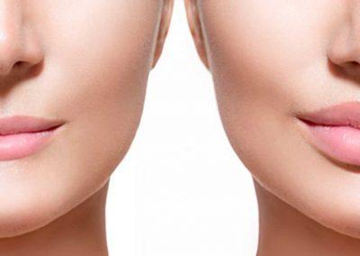 rejuvenecimiento-facial-tempus-3