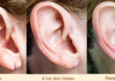 tratamiento-lobulo-orejas-tempus